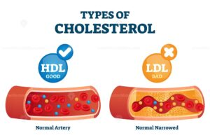 Diferenças entre Colesterol HDL e LDL